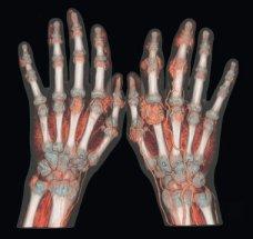 Gout Hands